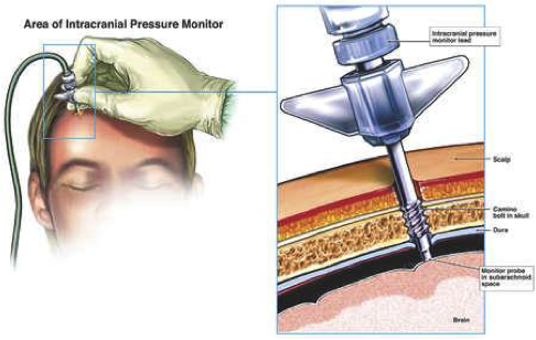 Intercranial pressure monitor infograph