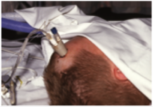 Patient with equipment connected to forehead