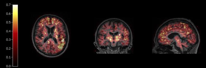 3-sided profile image of human head