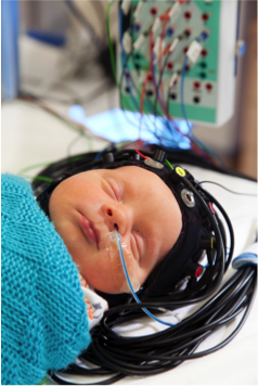 Baby with scan helmet on